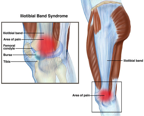 Is my knee pain coming from my IT Band?