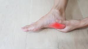 6 things you can do for plantar fasciopathy!