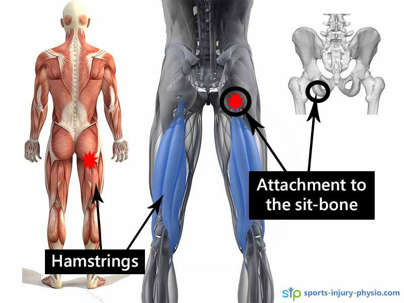 6 top tips for treating High Hamstring Tendinopathy